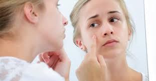 Khả năng phục hồi da