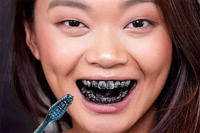 kem đánh răng than hoạt tính